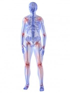 Mit Krafttraining gegen Gelenkschmerzen